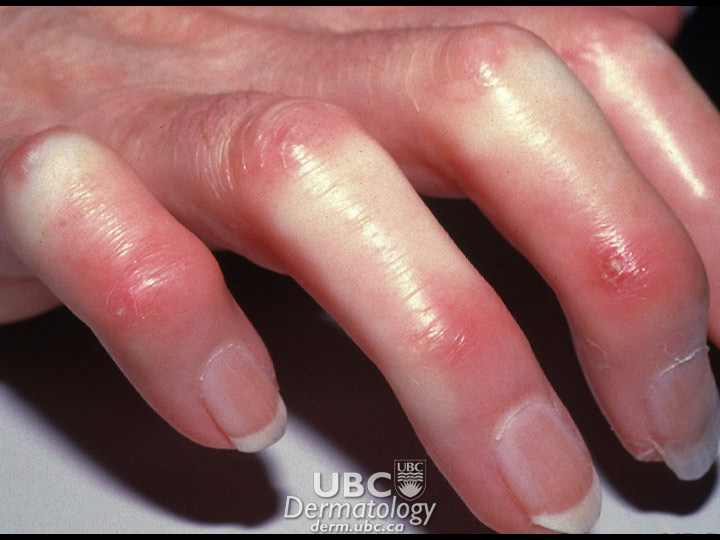 connective disease-2 scleroderma